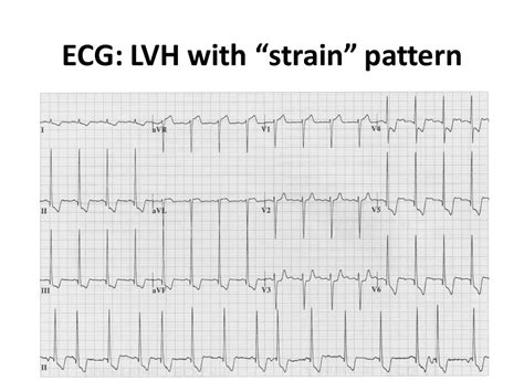 strain pattern ecg definition syncope victoria e judd ppt download