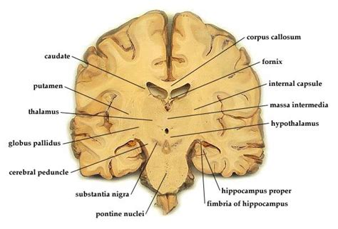 coronal sections of the brain medial geniculate nucleus coronal www pixshark com