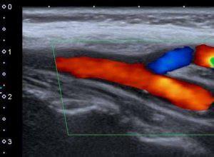 ecodoppler vasi epiaortici come si esegue ecodoppler diagnostica nella patologia vascolare