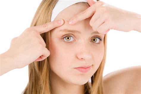 Wajah Avoskin kulit wajah berjerawat karena keturunan hm si putih cantik