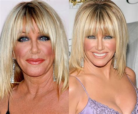 suzanne somers celebrity plastic surgery 24 50 best images about celebrity plastic surgery gossip on