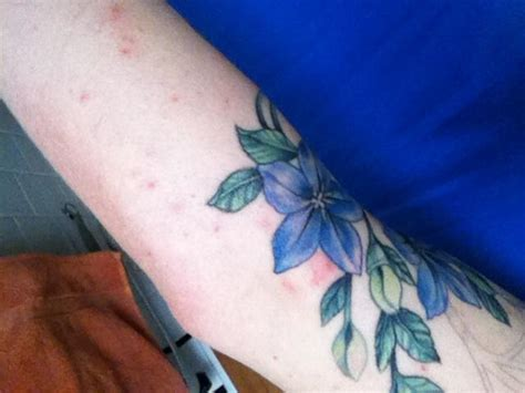 rash around tattoo net itchy rash around new 10215428