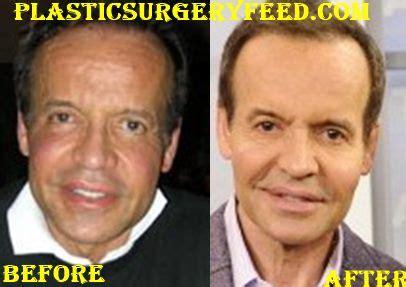louis licari plastic surgery before louis licari plastic surgery plastic surgery feed