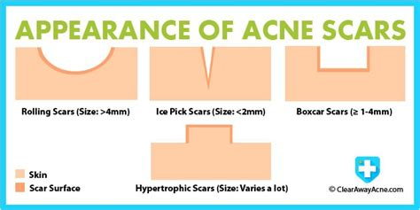 i got rid of all my deep rolling acne scars with msm cream get rid of acne scars for good trusper