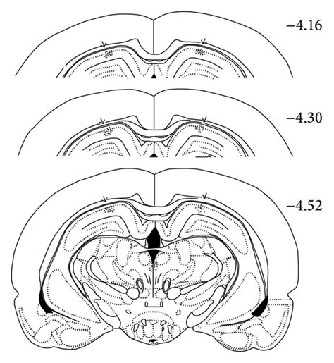 rat brain coronal sections is hippocus susceptible to antinociceptive tolerance to