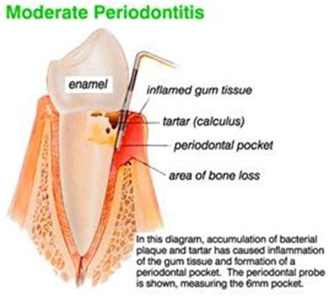 Periodontics Dentistry Research, Periodontics Dental Dentist Resources