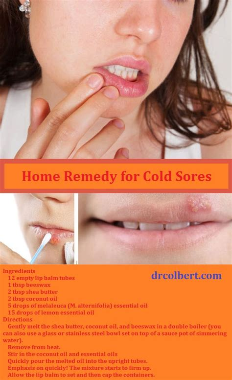 cold sore remedy interests cold sore and
