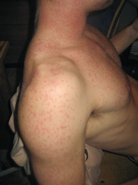 keratosis pilaris home remedy
