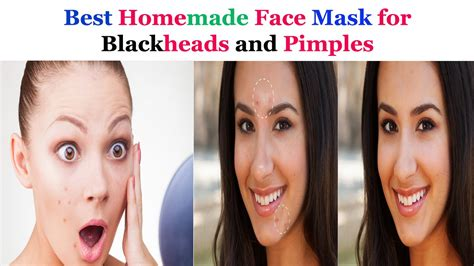 best diy mask for blackheads best mask for blackheads and pimples