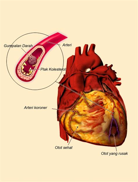 Is Jantung macam macam obat sublingual untuk hipertensi info