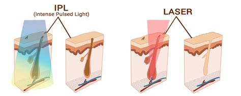 ipl or laser hair removal laser by sia