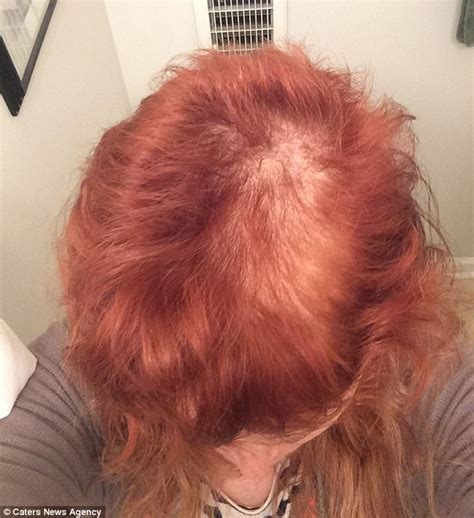 trichtolimania short thick hair pulling engineer creates lotion to cure her trichotillomania