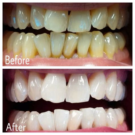 baws   teeth whitening kits