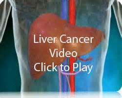 Alternative liver cancer treatment natural liver cancer treatment