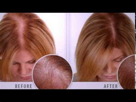 how to strengthen hair follicles in females over 40 how to regrow hair naturally for women learn more youtube