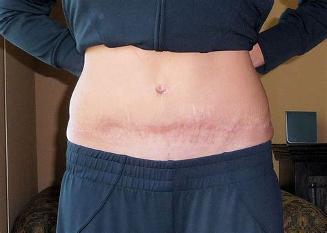 plastic surgery after c section tummy tuck
