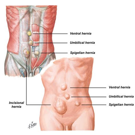 diagram of inguinal hernia hernias shahab siddiqi colorectal surgeon