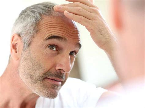 what percentage of men lose hair hair loss treatments for men 17 hair loss remedies