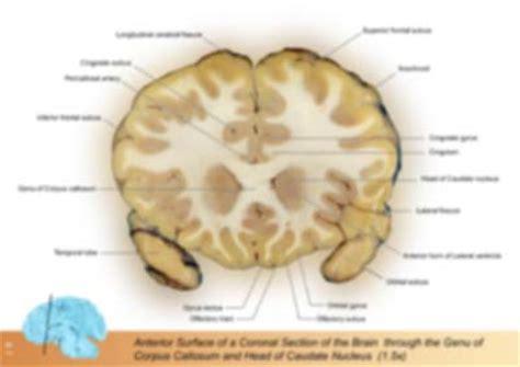 coronal sections of the brain coronal plane brain images
