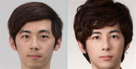 western actor with lazy eye 3 amazing asian eye surgery before and after
