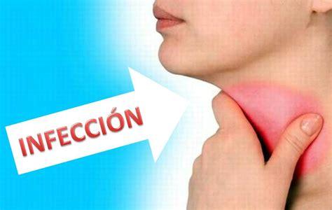 remedios caseros para curar infeccion vajinal fotos infecci 243 n de garganta como aliviarla en 4 horas youtube