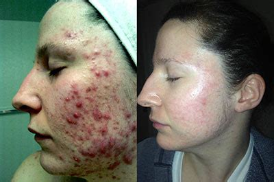 accutane and mood swings accutane isotretinoin manassas va dermatologist