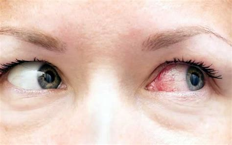 how to get rid of pink eye fast wise home remedies