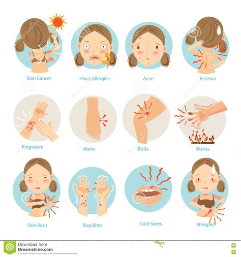 skin problems treatments washing stock vector royalty free 623665466 skin problems stock vector image 73398573