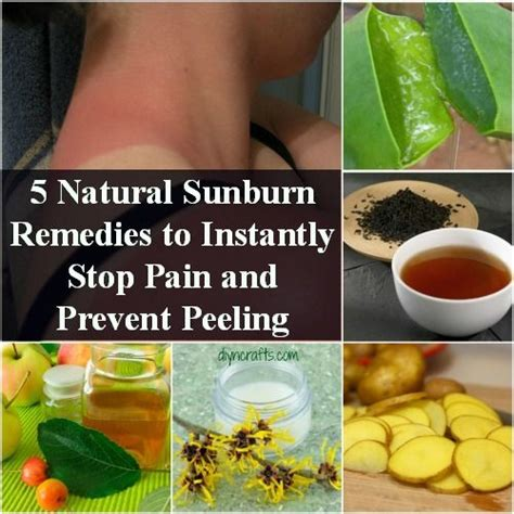 best 25 sunburn remedies ideas on