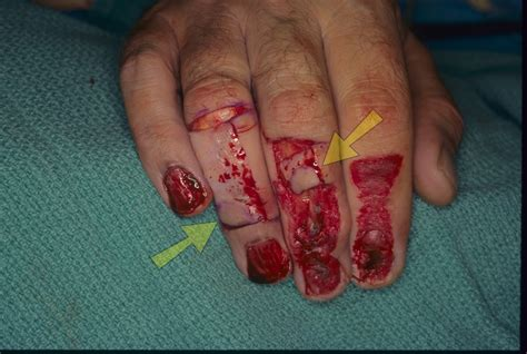 what are nail beds trauma nail bed and fold reconstruction with nail bed grafts and reverse dorsal cross