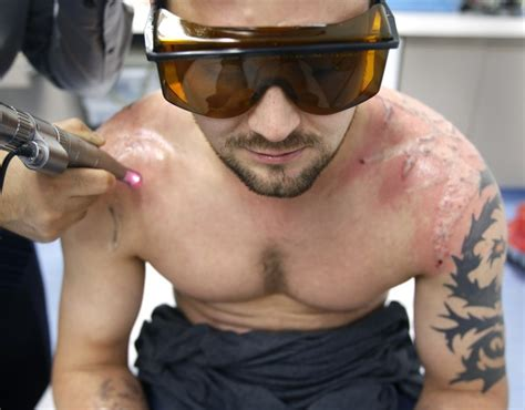 mike driver laser tattoo removal think before you ink removal costly