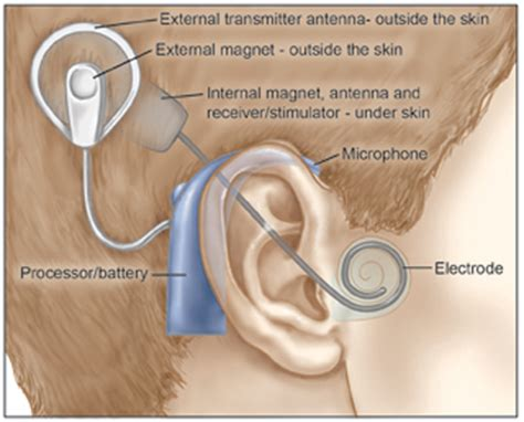 cochlear implant diagram cochlear implants surgery risks nyee