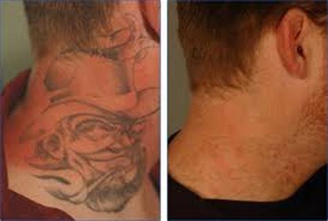 tattoo removal houston top supernatural tattoos houston tattoo removal http