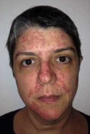 beauty after chemo treatment woman diagnosed with lung cancer documents her journey