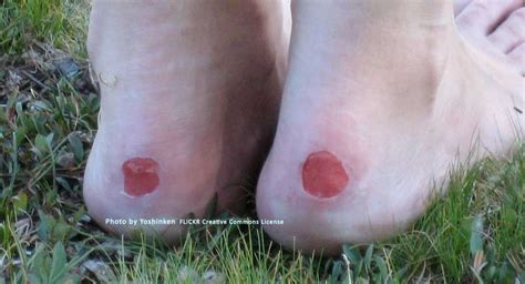 how to heal blisters from new shoes style guru fashion