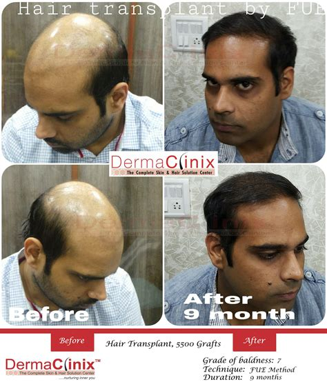 best hair transplant doctors in america best hair transplant doctors in america best hair