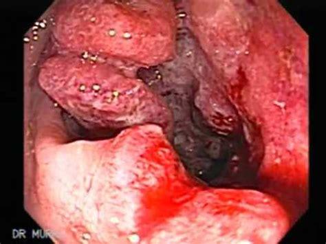 me sale sangre por el ano c 225 ncer de colon y recto con hemorroides internas youtube