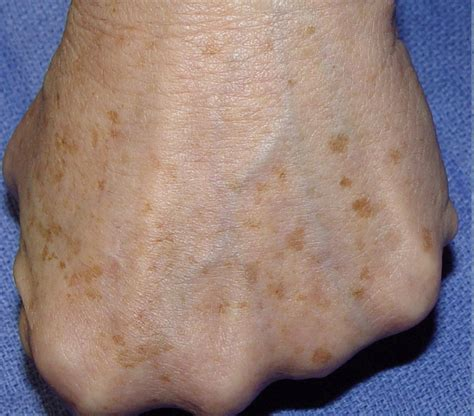 spot causes age spots on and what causes them skin care remedies