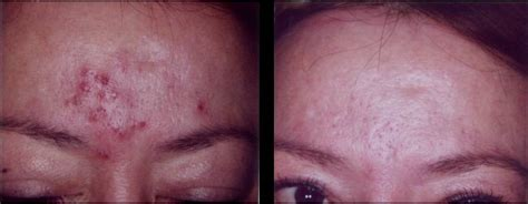 blue light cystic acne see which laser or light treatment is right for your skin