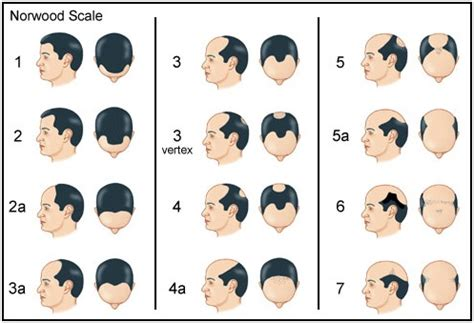 Hair Type Scale by Norwood Classification Scheme