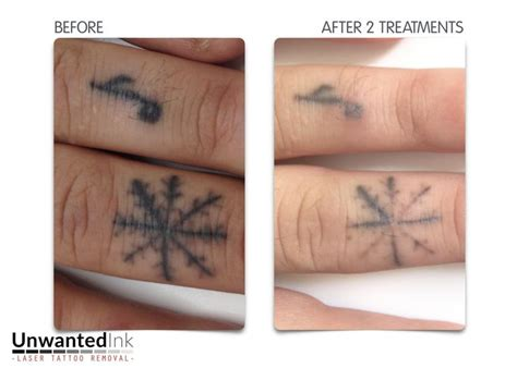 faded finger tattoo 104 best laser removal sydney ink