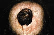 calcola mutuo banco di napoli melanoma cuoio capelluto america s best lifechangers