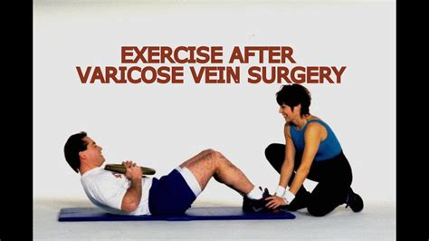 exercise after varicose vein surgery what is the best exercise