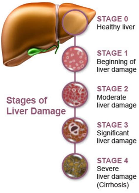 liver failure stages liver failure causes symptoms and treatment health care 171 qsota 187