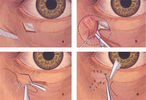 Eyelid Conjunctival And Orbital Tumors An Atlas 3e Shields surgical management of eyelid lesions eyelid diseases