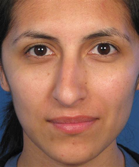 with snout rhinoplasty correction crooked nose deformity