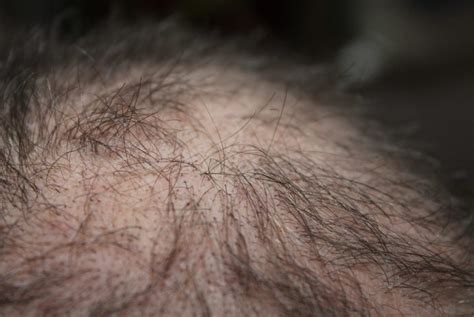 female pattern heart disease is there a link between hair loss and heart disease what