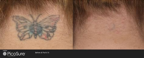 does tattoo laser removal hurt does removal hurt laser aesthetic center