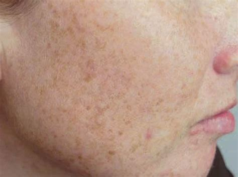 light spots on skin from sun how to remove sun spots dr osman