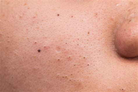 pores of color blackheads facts causes and treatment